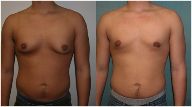 MALE BREAST REDUCTION TREATMENT RESULTS