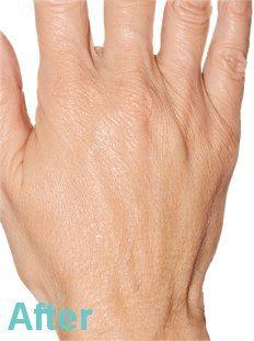 HAND REJUVENATION WITH PLATELET RICH PLASMA RESULTS