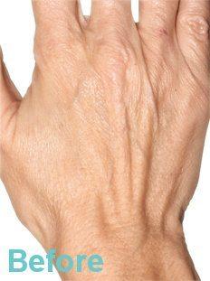 Hand Rejuvenation Treatment 1