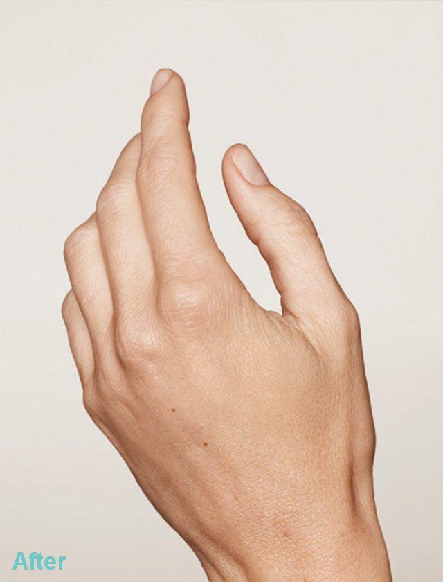 hands after
