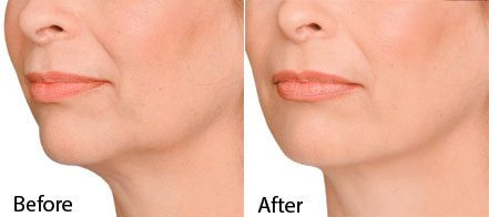NECK LINES BOTOX TREATMENT BEFORE AND AFTER RESULTS