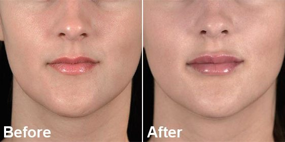 LIP ENHANCEMENT DERMAL FILLER TREATMENT RESULTS