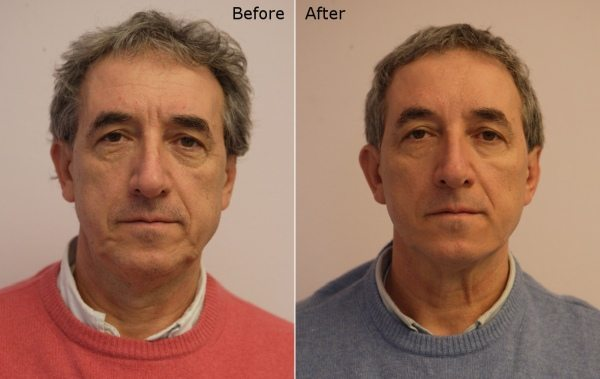 Silhouette soft thread lift in a male patient-before and after