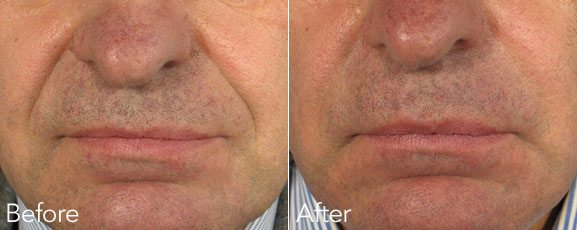 Naso-labial lines treatment-before and after photo