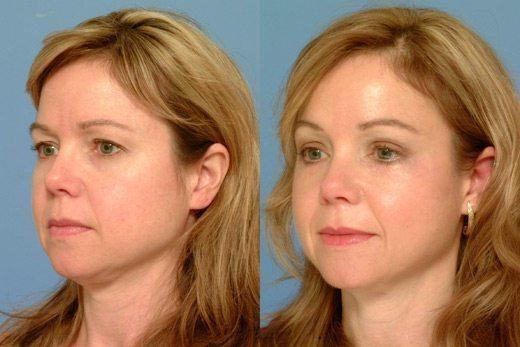 Eyebrow Lift Dermal Filler Treatment 1