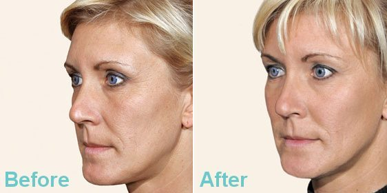 DERMAL FILLER EYE TREATMENT