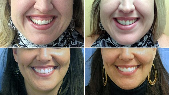 Botox Gummy Smile treatment before and after results