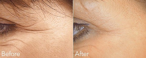 DERMAL FILLER SMILE LINES TREATMENT