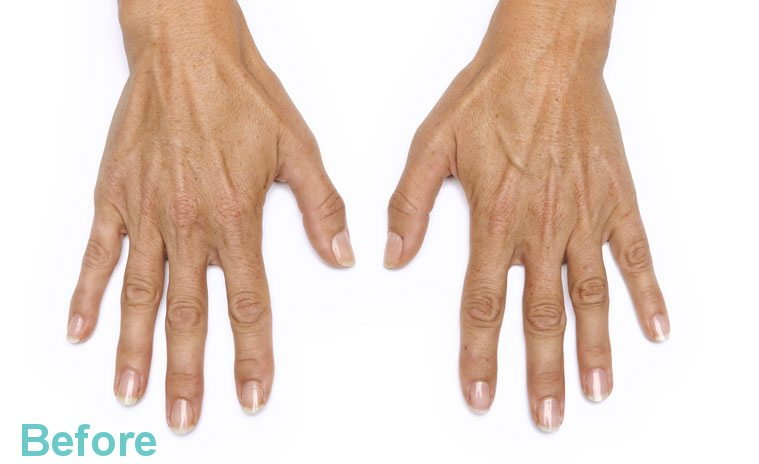 hands before