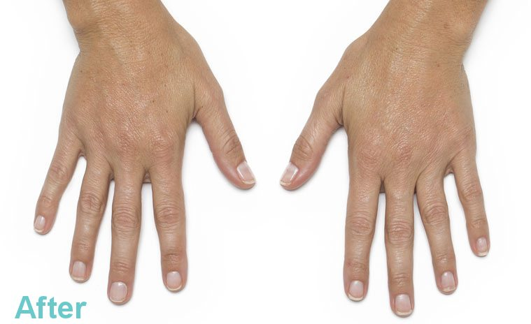 Hand Rejuvenation Treatment 4