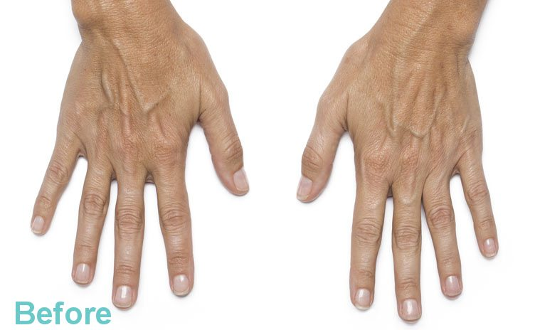 Hand Rejuvenation Treatment 3