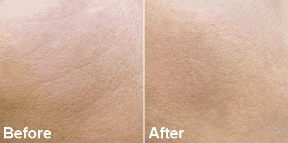 MESOTHERAPY TREATMENT FOR SKIN