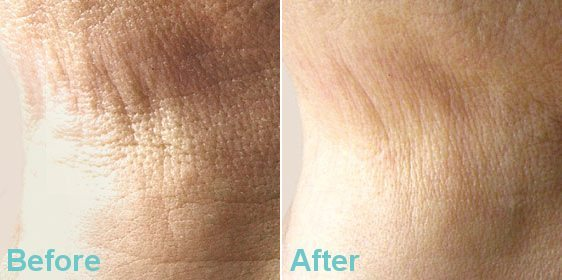 SAGGY & LOOSE SKIN DERMAL FILLER TREATMENT