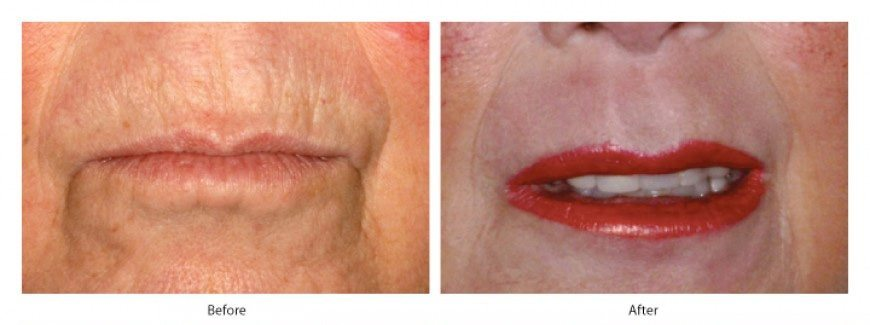 DERMAL FILLER SMOKERS LINES TREATMENT