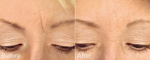 FROWN LINE DERMAL FILLER TREATMENT