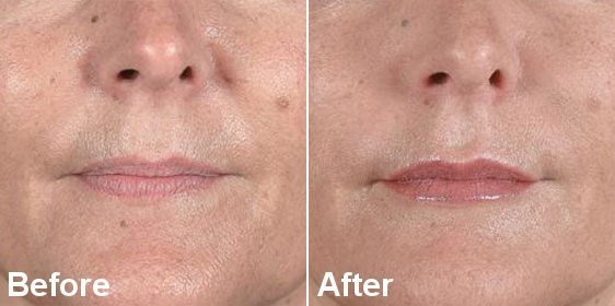 NOSE TO MOUTH LINES DERMAL FILLER TREATMENT