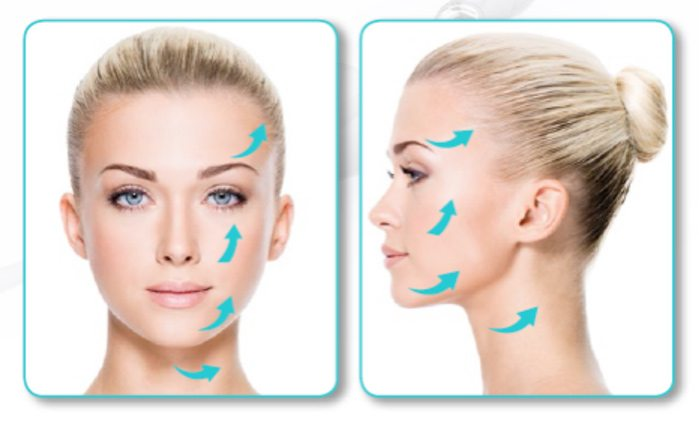 SILHOUETTE SOFT LIFT AREAS OF TREATMENT