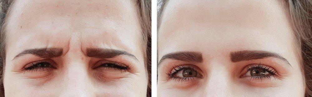Botox Treatments 2