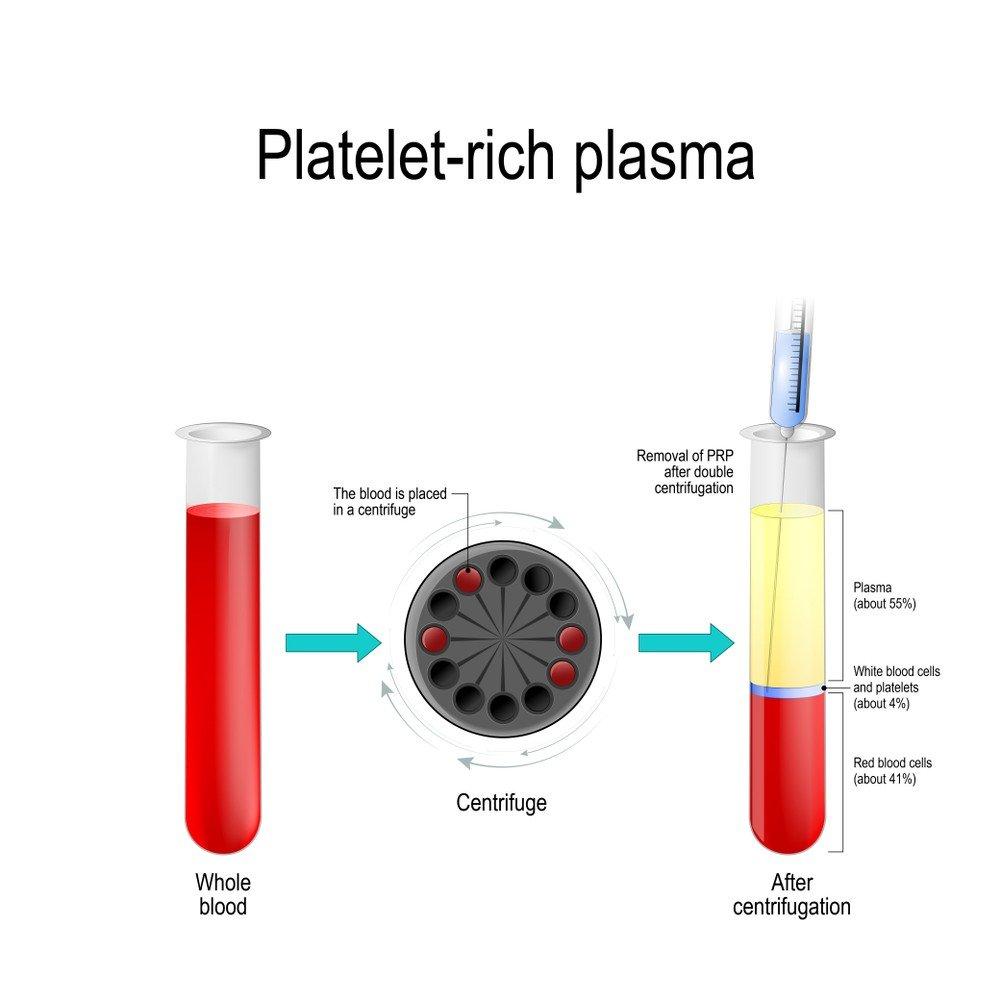 Platelet Rich Plasma - PRP Treatment 1