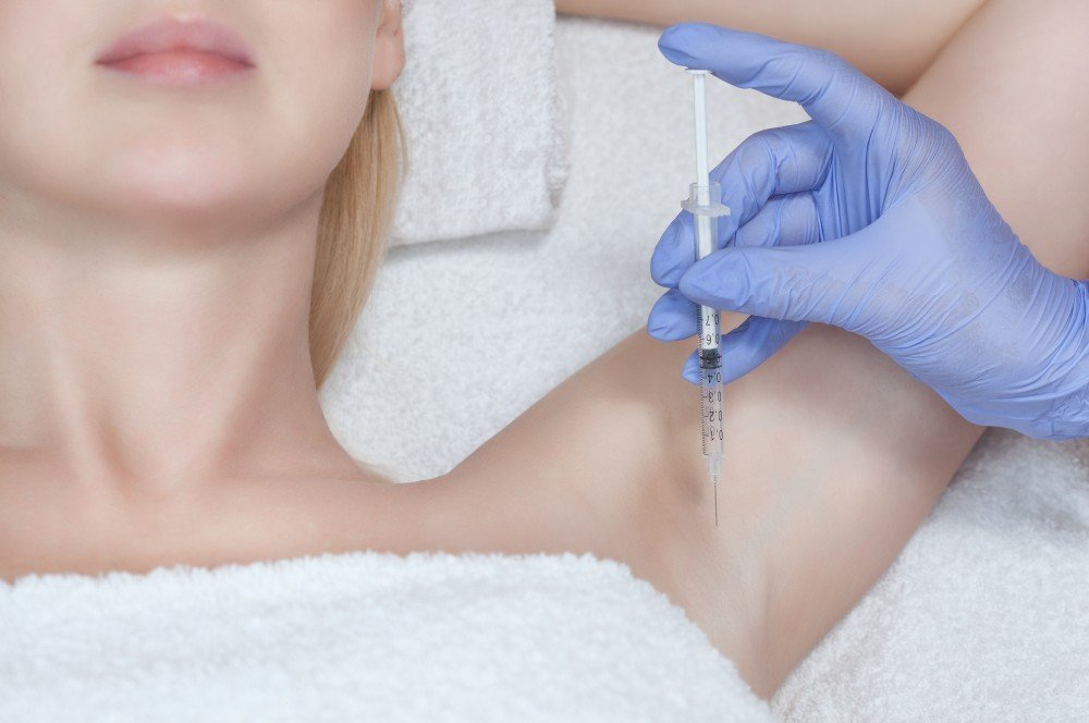 Botox Treatment For Excessive Forehead & Underarm Sweating