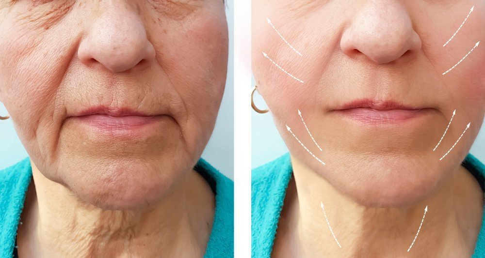 Facial remodelling for rounded and square shape face to gently elongated shape 2