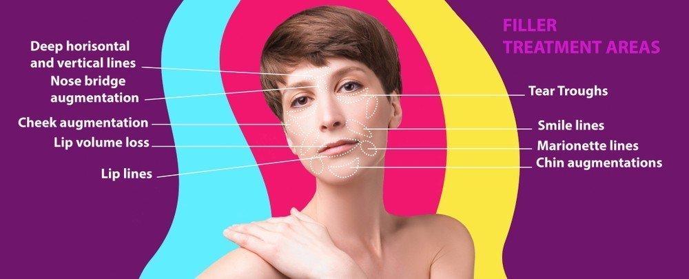 Dermal filler face treatment illustration on a diagram