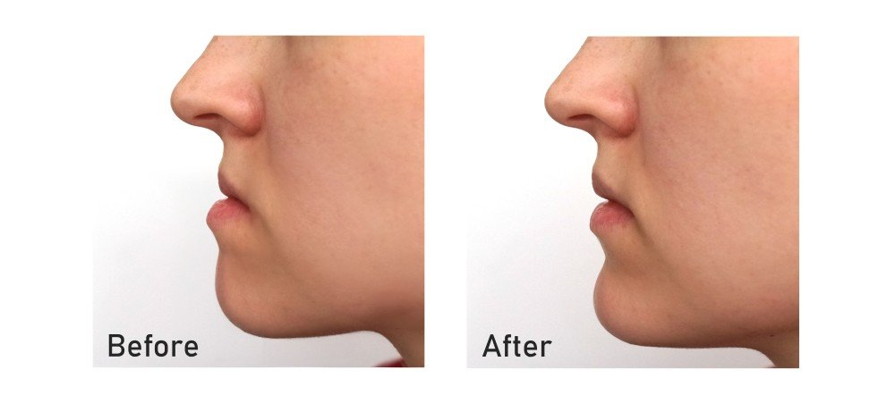 Botox Lower Jaw line Definition Treatment Available at