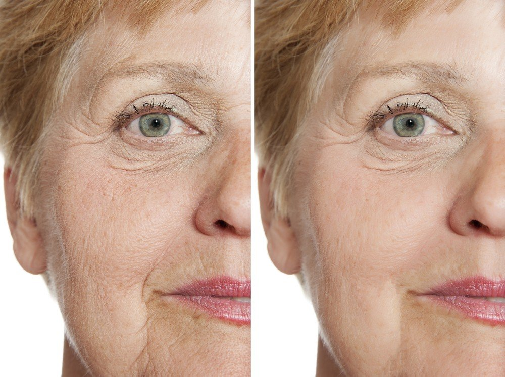 Eye Area Rejuvenation 6