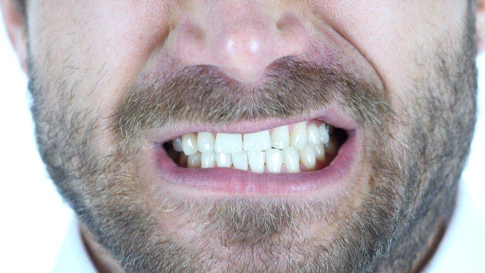 Teeth Grinding Botox Treatment 2