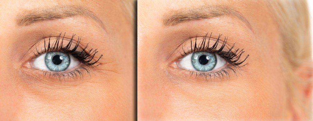 Eye Area Rejuvenation 5