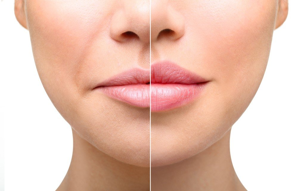 Mouth to Lip Lines Dermal Filler Treatment 1