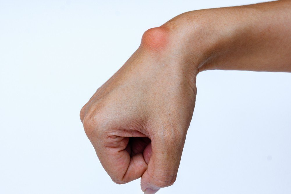 inflamed-gangion-cyst-on-wrist