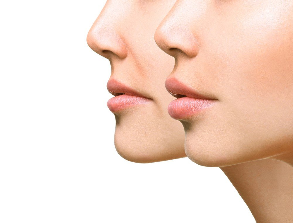 Lip Dermal Filler Treatment 1