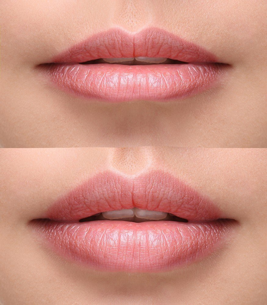 Lip rejuvenation with Dermal Filler- great before and after photo
