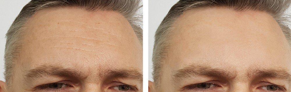 Anti-Wrinkle Treatments 3