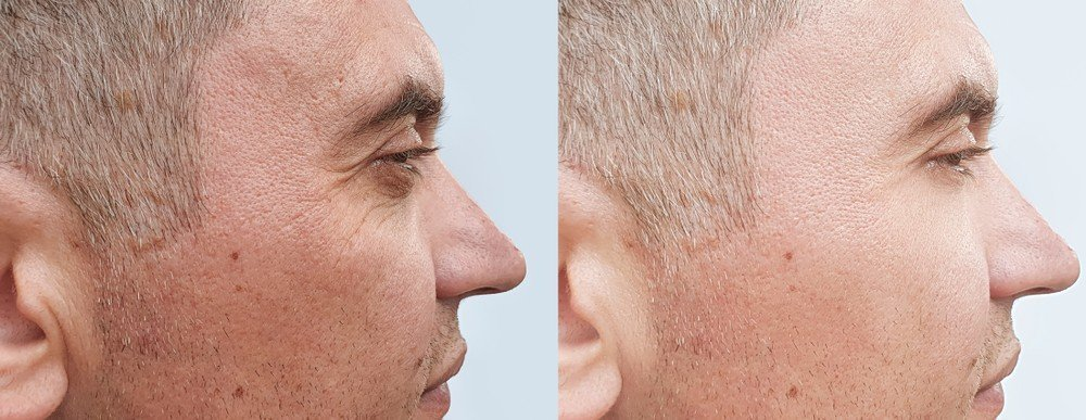 Dermal Filler Smile Lines Treatment 1