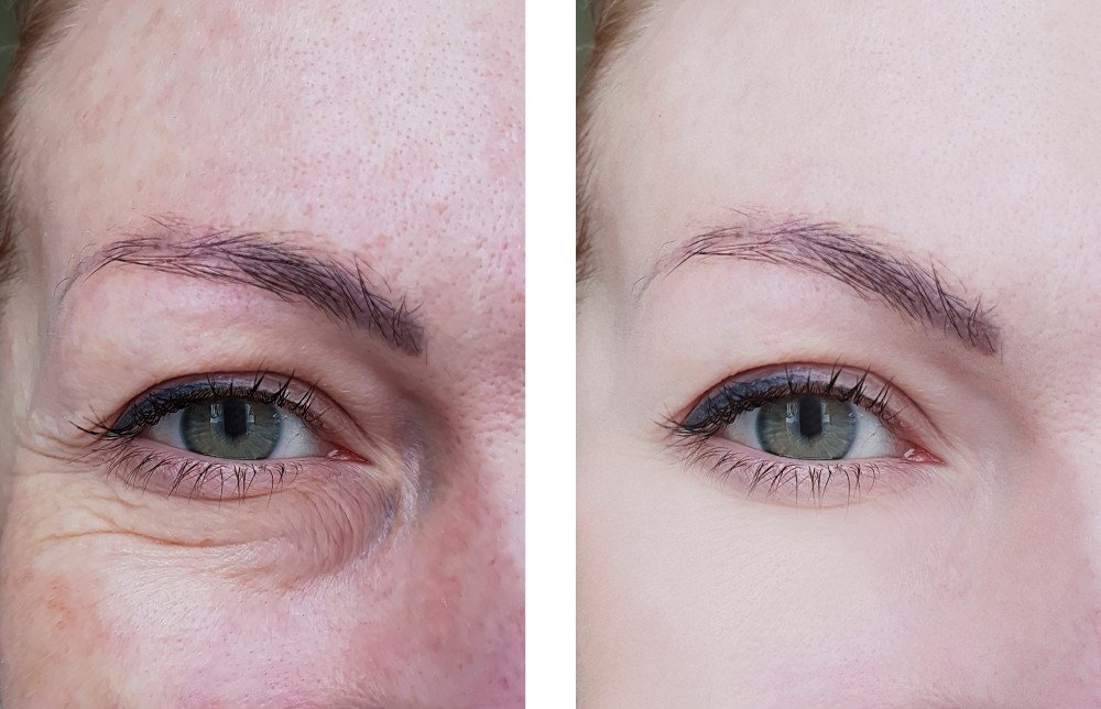 Eye Area Rejuvenation 4