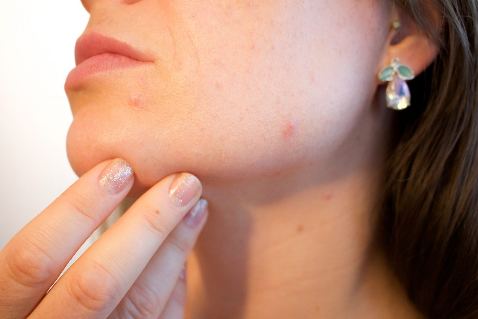 Acne and Acne Scarring Treatments 1