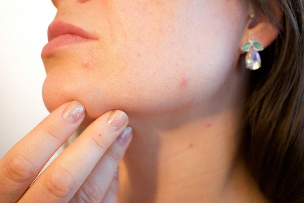 Skin Peels Treatments 2