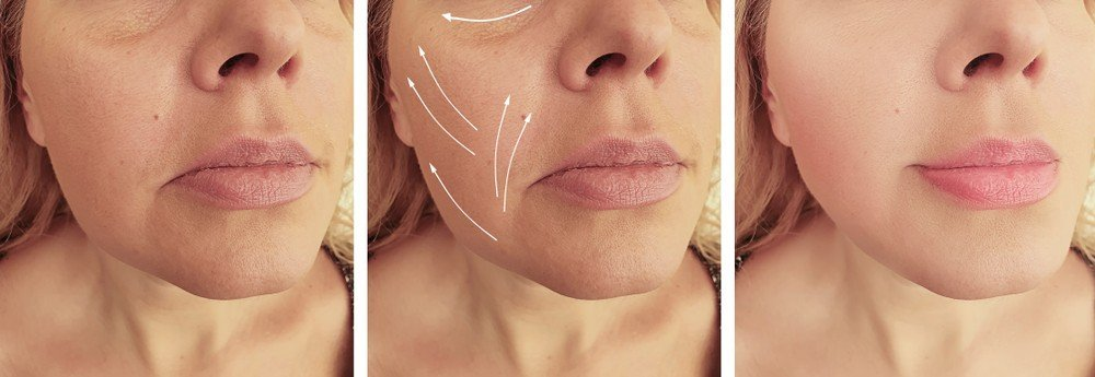 Soft Lift Procedures Jaw line Contouring