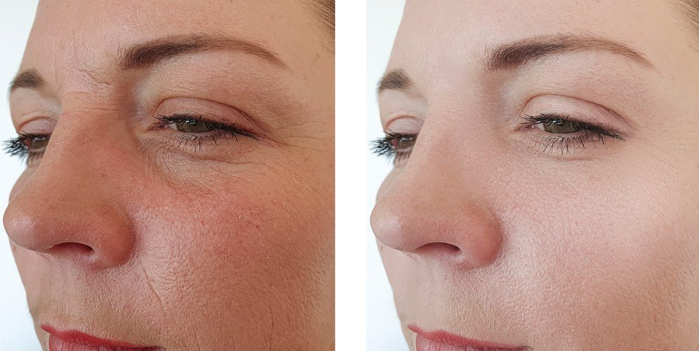 Eye Area Rejuvenation 2