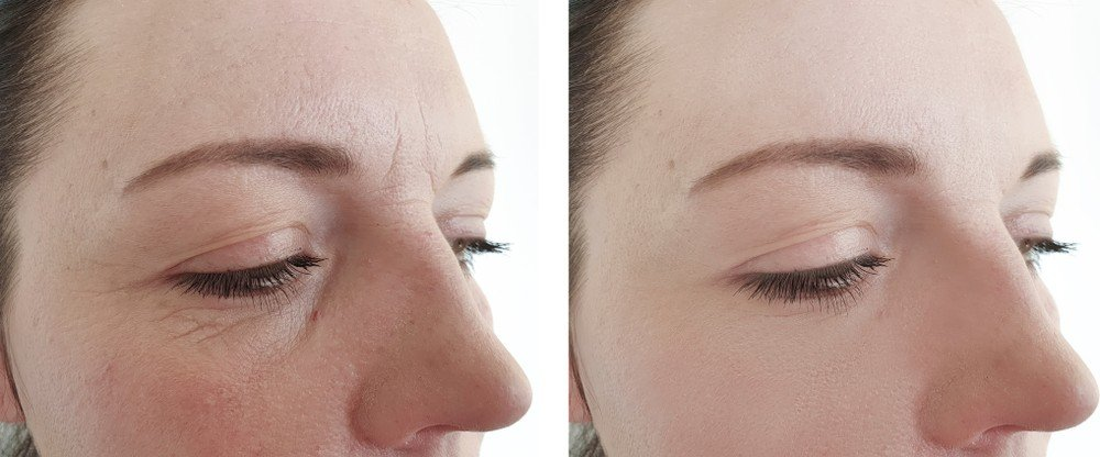 Eye Area Rejuvenation 1
