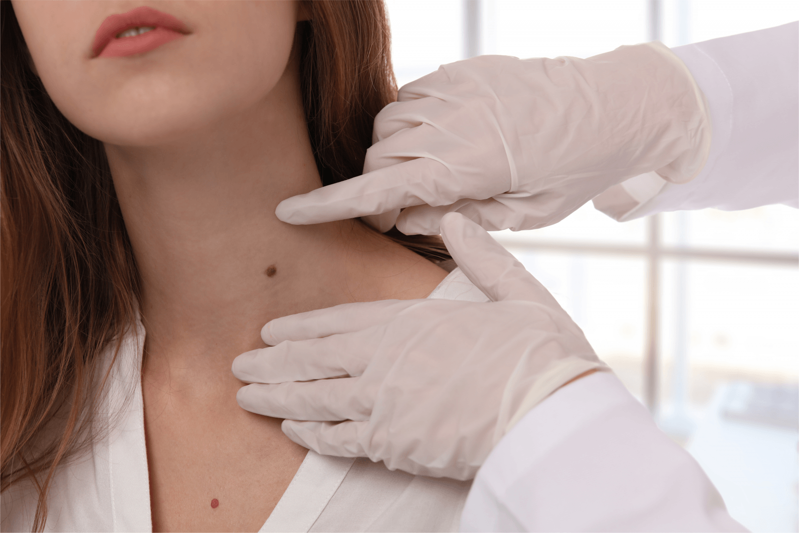 Mole-on-the-neck-for-removal