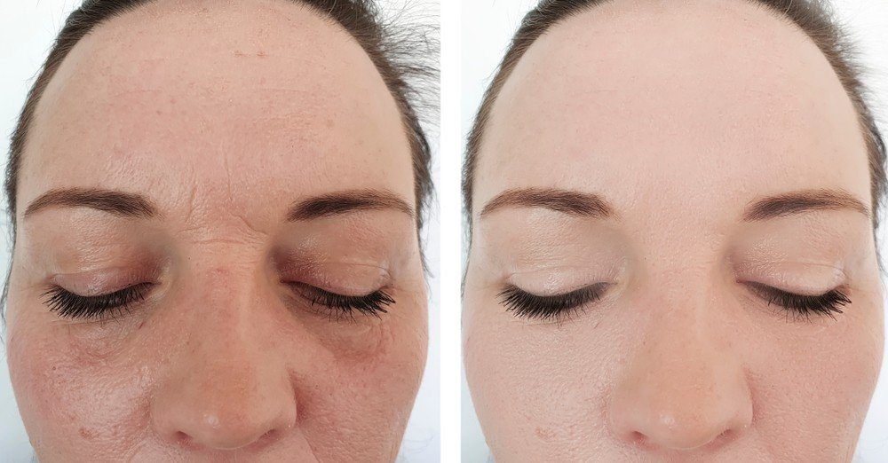 Deep Frown Lines treatment 2
